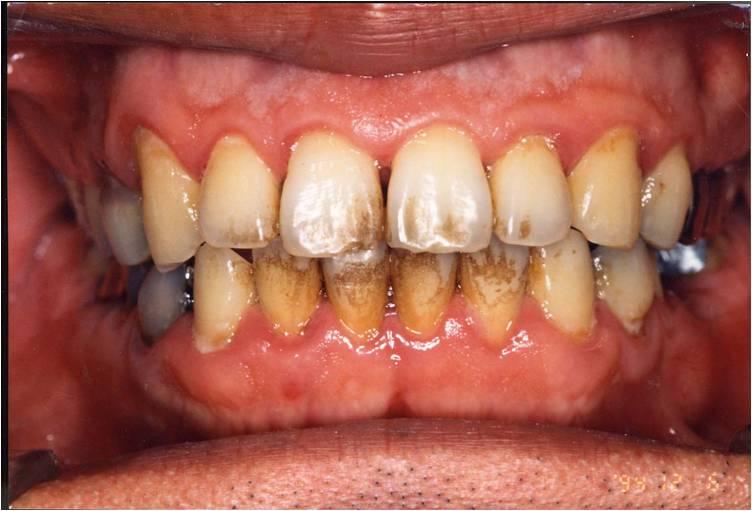 画像 : 歯についてしまったタバ...